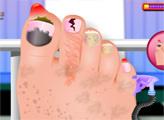 Игра Спа-педикюр и хирургия ногтей