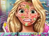 Игра Принцесса Голди проблемы с лицом