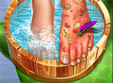 Игра Доктор лечит ноги